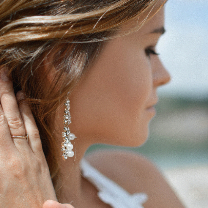 tips mengatasi dermatitis karena perhiasan
